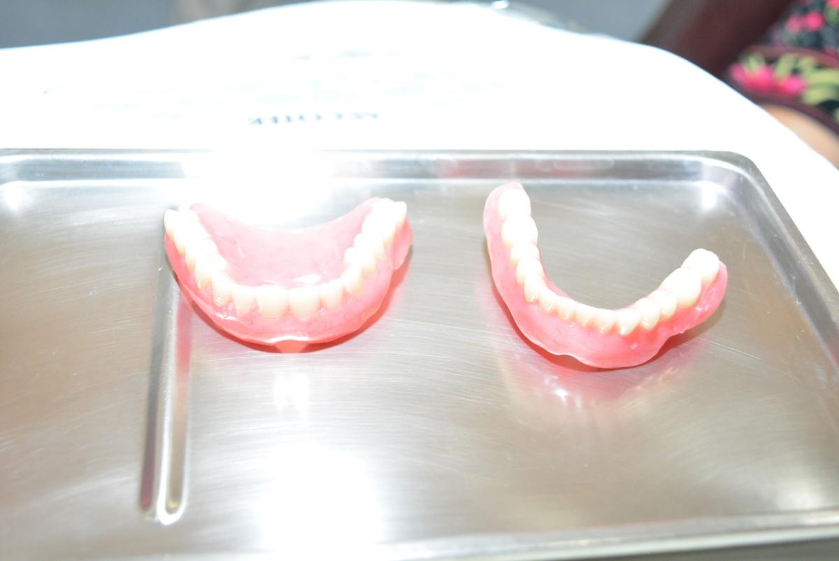 109年老人假牙補助3月2日開始申請-受理至9月底